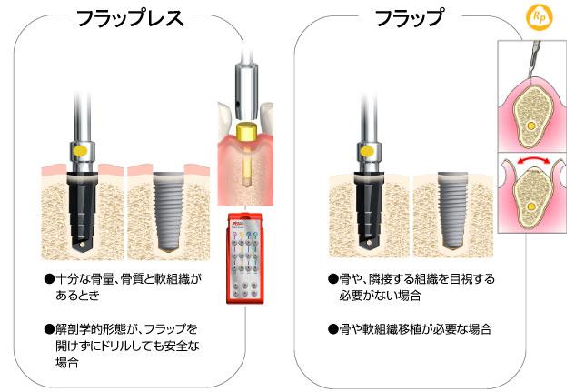 埋入方法-歯肉の扱い-