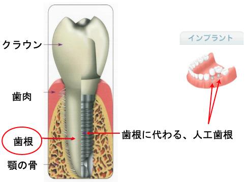 implant_09